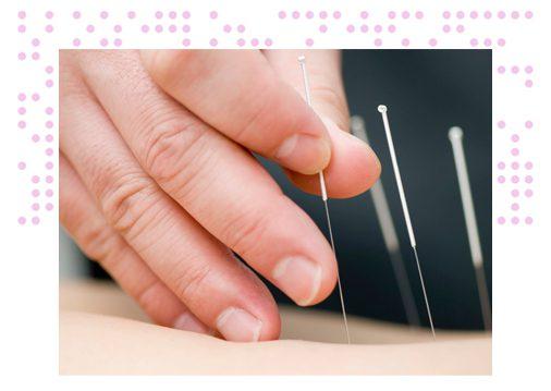 acupuntura en Torrent
